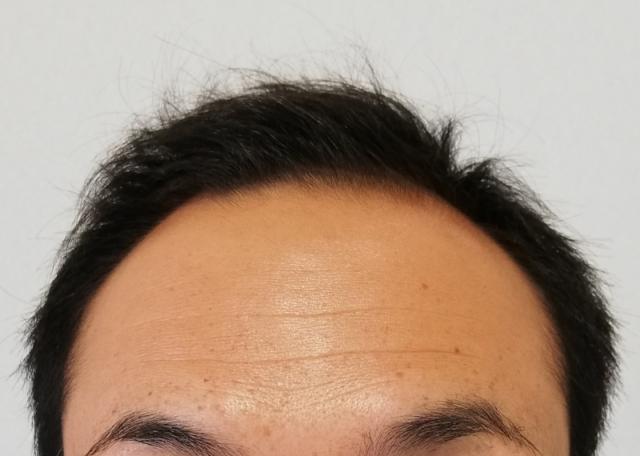 男の悩み,口コミ,脱毛,毛,除毛,すね毛,ひげ,嫌われる,体毛,禿げ,AGA